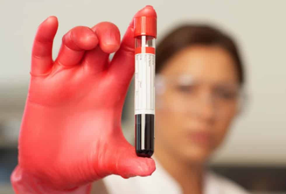 Insights from Anti-Aging Blood Tests