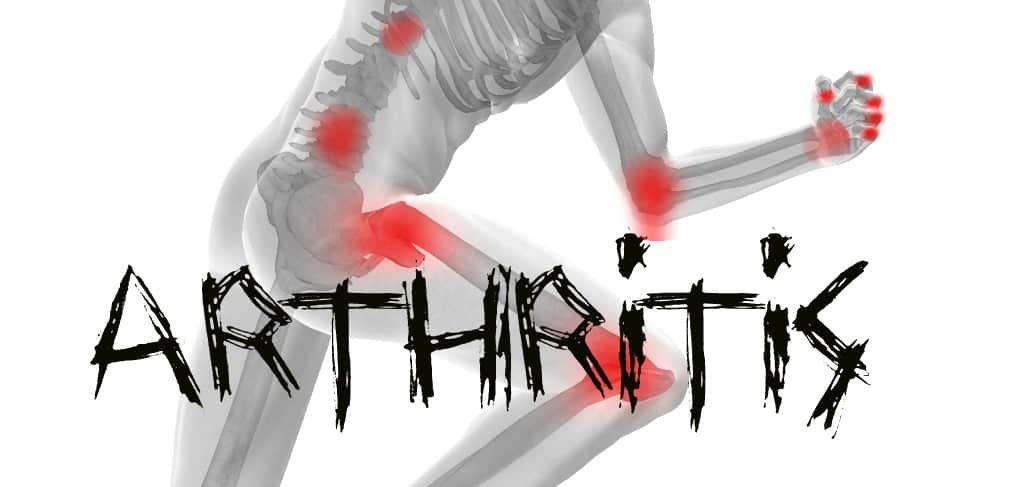 Stop Living in Pain: Diagnose and Treat Arthritis