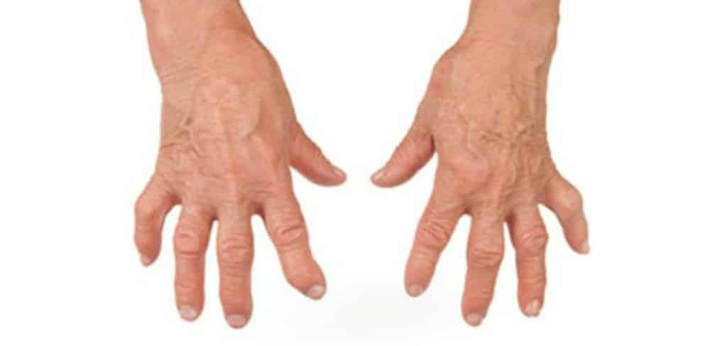 Celebrity Arthritis Quiz