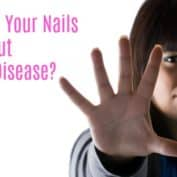 What Do Your Nails Say About Kidney Disease?