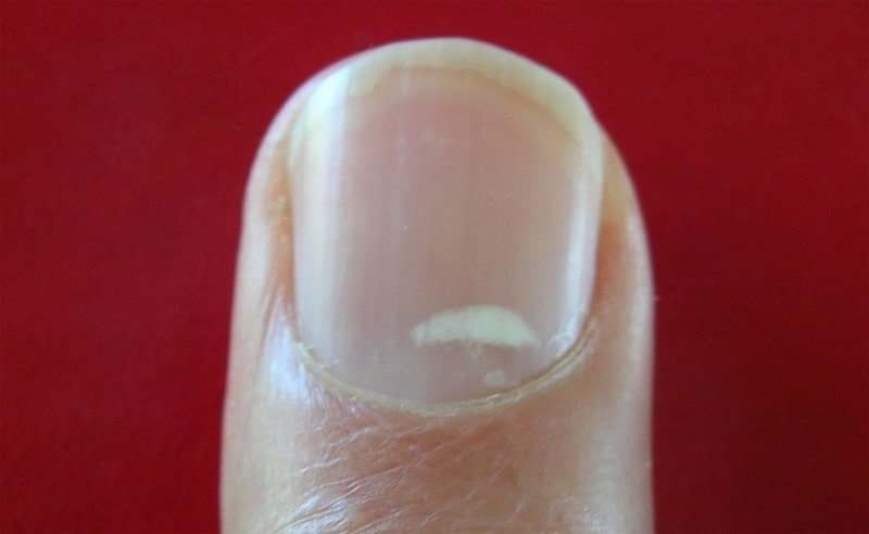 What Do Your Nails Say About Kidney Disease