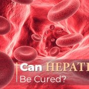 Can Hepatitis C Be Cured?