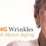 Having Wrinkles Is Not All About Aging