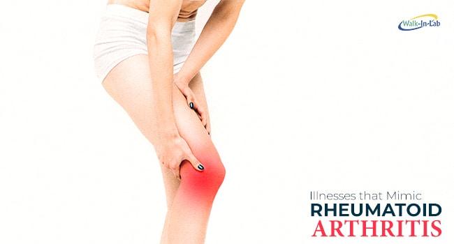 Illnesses That Mimic Rheumatoid Arthritis Walkin Lab