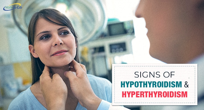 Signs of Hypothyroidism & Hyperthyroidism